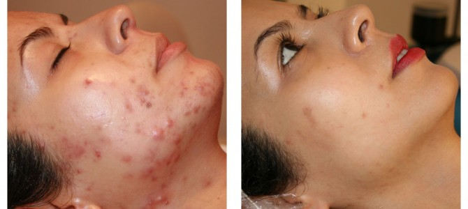 Best-acne-spot-treatment