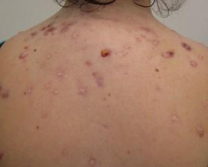 acne-hair-loss-irregular-periods-27331