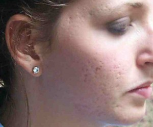 acne_scar1-before