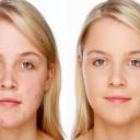 cystic_acne_treatment
