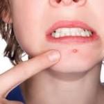 肌をきれいにする方法とニキビ関係