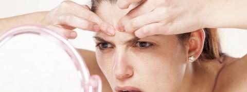 Pimples_177332204-480x180