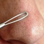 鼻のニキビ治療方法
